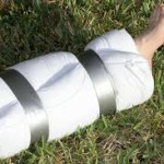 Dealing With Sprains and Broken Bones in the Field
